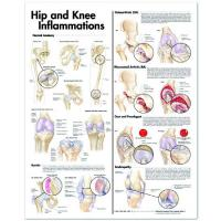http://www.astiraustralia.com.au/media/catalog/product/resized/200X_200/hip-and-knee-inflammation.jpg